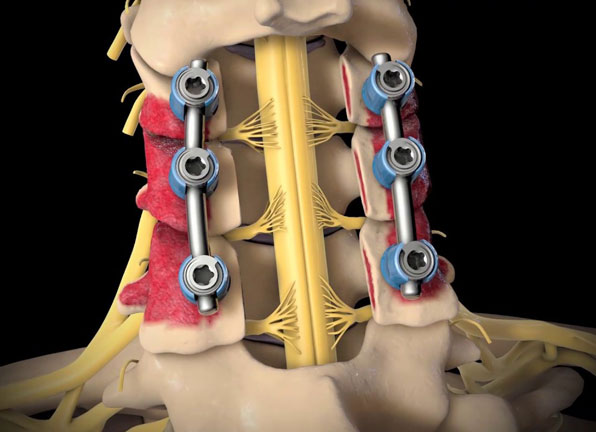 Posterior Spinal Fusion with Instrumentation Surgery